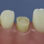 Dentes Diferenciados 151