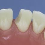 Dentes Diferenciados 96