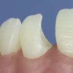 Dentes Diferenciados 95