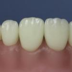 Dentes Diferenciados 162