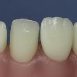 Dentes Diferenciados 161