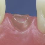 Dentes Diferenciados 93