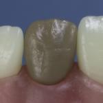 Dentes Diferenciados 92