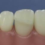 Dentes Diferenciados 91