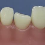 Dentes Diferenciados 90
