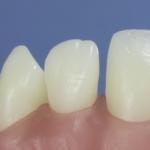 Dentes Diferenciados 89