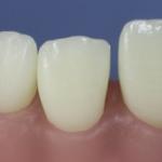 Dentes Diferenciados 85