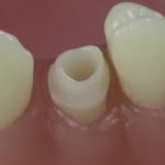 Dentes Diferenciados 83