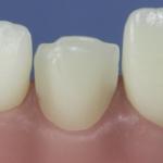 Dentes Diferenciados 79