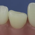 Dentes Diferenciados 82