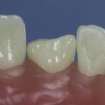 Dentes Diferenciados 81