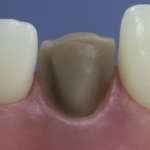 Dentes Diferenciados 80