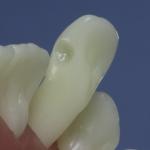 Dentes Diferenciados 26