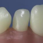 Dentes Diferenciados 76