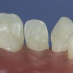 Dentes Diferenciados 75