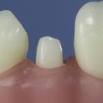Dentes Diferenciados 74