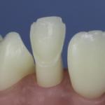 Dentes Diferenciados 73