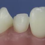 Dentes Diferenciados 72