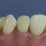 Dentes Diferenciados 160