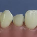 Dentes Diferenciados 159