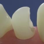 Dentes Diferenciados 78