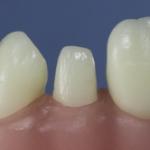 Dentes Diferenciados 77