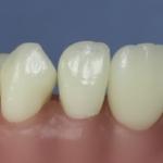 Dentes Diferenciados 158