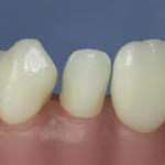 Dentes Diferenciados 157