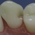 Dentes Diferenciados 25