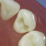 Dentes Diferenciados 70