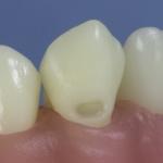 Dentes Diferenciados 69