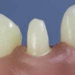 Dentes Diferenciados 66
