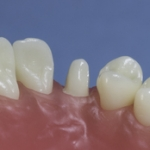 Dentes Diferenciados 188