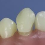 Dentes Diferenciados 156