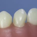 Dentes Diferenciados 71