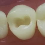 Dentes Diferenciados 24