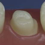 Dentes Diferenciados 22