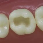 Dentes Diferenciados 62