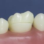 Dentes Diferenciados 124