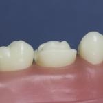 Dentes Diferenciados 123