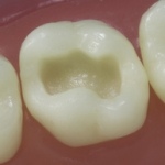 Dentes Diferenciados 61