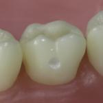 Dentes Diferenciados 60