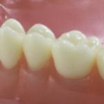 Dentes Diferenciados 187