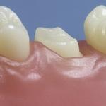 Dentes Diferenciados 186
