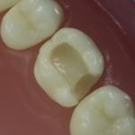 Dentes Diferenciados 59