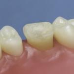 Dentes Diferenciados 141