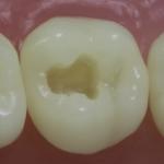 Dentes Diferenciados 21