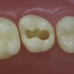 Dentes Diferenciados 64