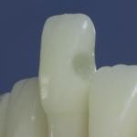 Dentes Diferenciados 19