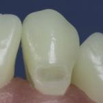 Dentes Diferenciados 17